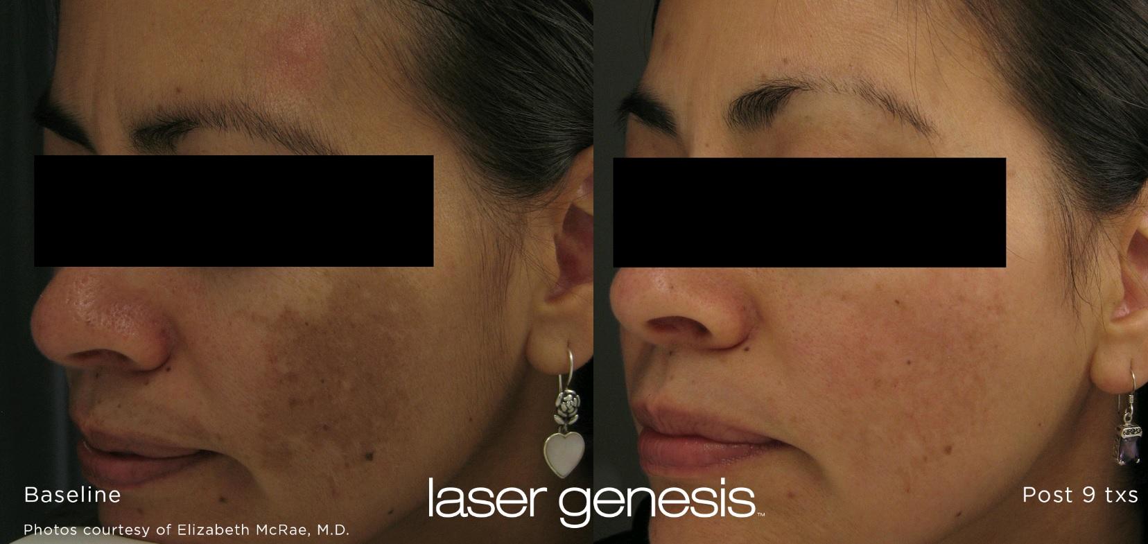 Laser Genesis Before After