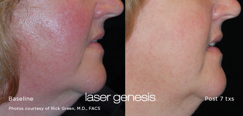 Laser Genesis Before After2
