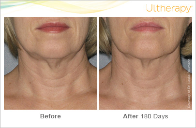 ultherapy-0025-0086w_beforeandafter_180day_1tx_neck