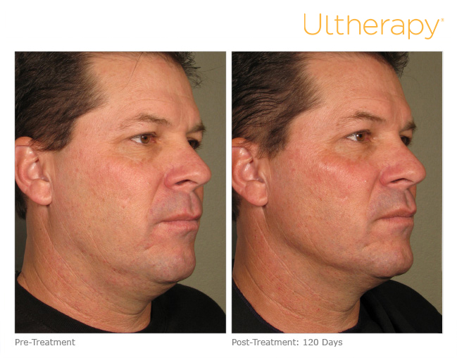 ultherapy-0058d_before-120daysafter_full