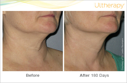 ultherapy_0024-0086w_beforeandafter_180day_1tx_neck2
