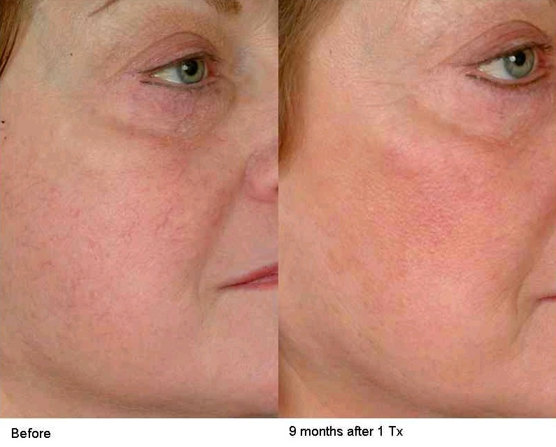 Face Vein Tx Before After