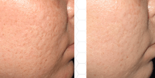collagen pin acne scarring