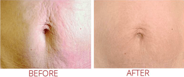 collagen pin stretch marks