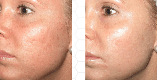 collagen pin sundamage and aging
