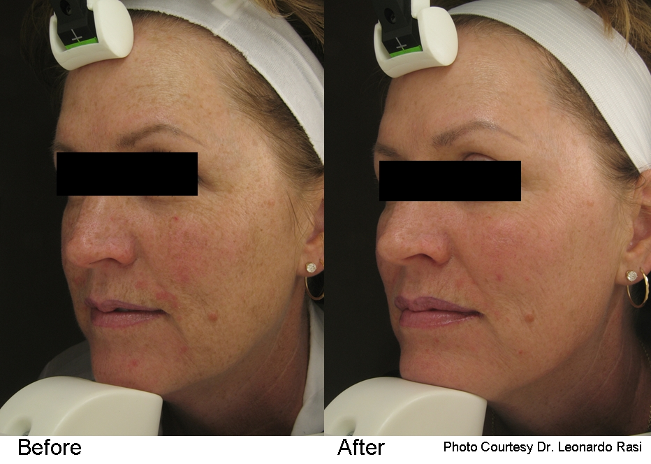 pearl befoer and after sundamage full face