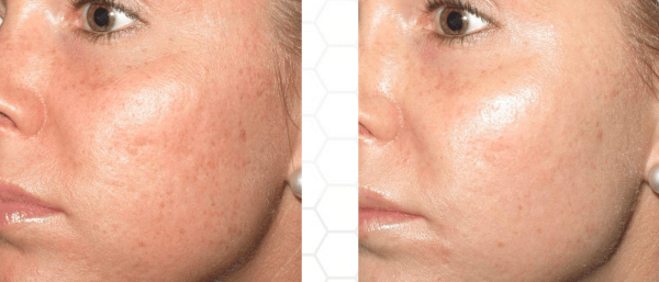 microneedling accent aesthetics golden co