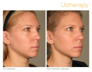 ultherapy treatment colorado
